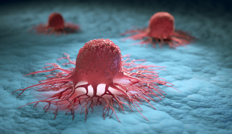 First big cancer contract sees biotech Angle stock jump featured picture