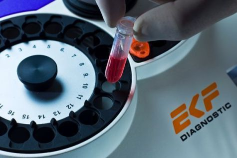 EKF Diagnostics' first half in line with upgraded expectations featured picture